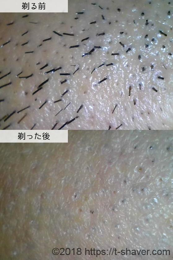 ジレット|マッハシンスリーターボの深剃り性能