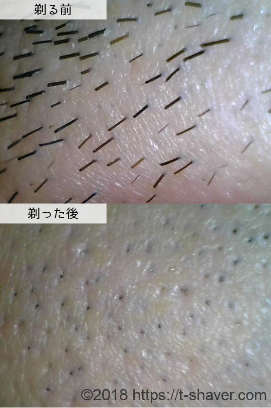 貝印|カイレザーアクシアの深剃り性能