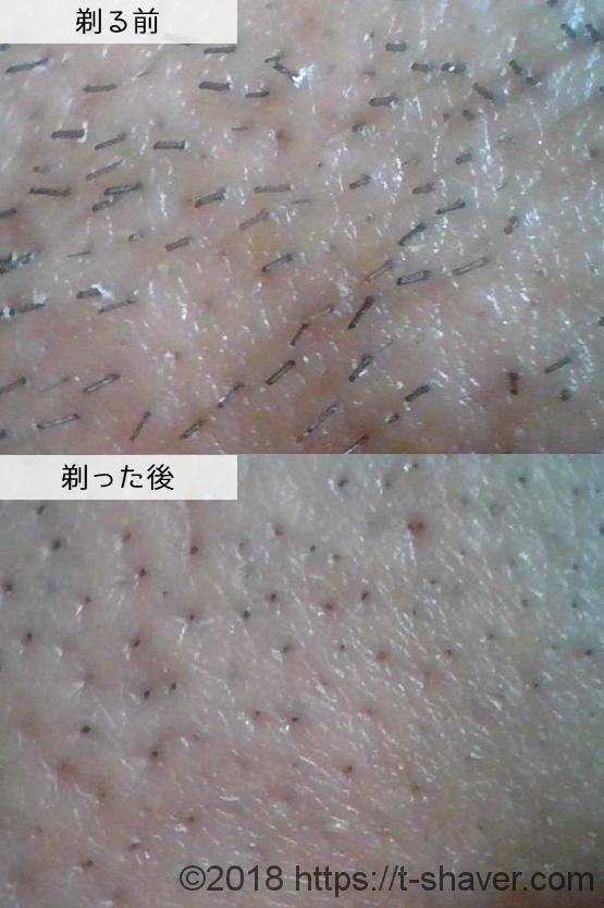 貝印 プレミアムディスポ イグニスの深剃り性能