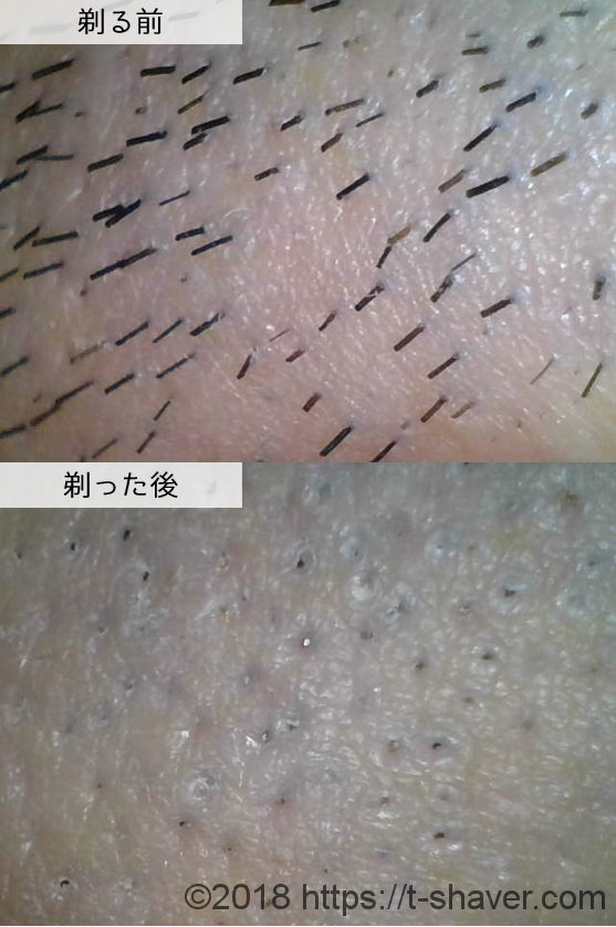 シック|ハイドロ5プレミアム敏感肌用の深剃り性能