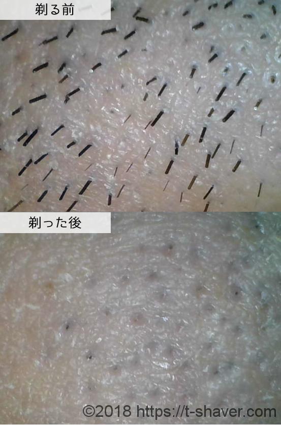 シック クアトロ5チタニウムの深剃り性能