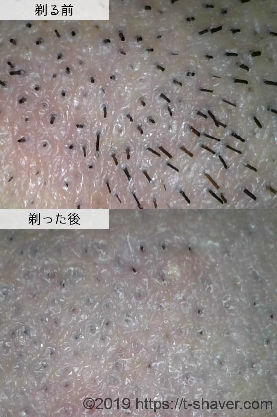 ジレット カスタムプラス3スムースの深剃り性能