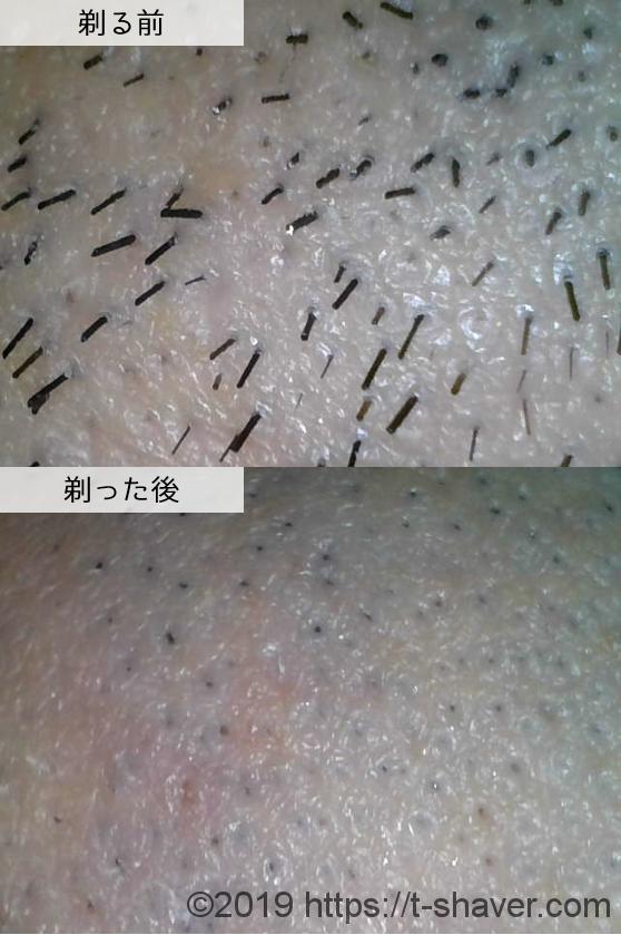 貝印 アイフィットの深剃り性能